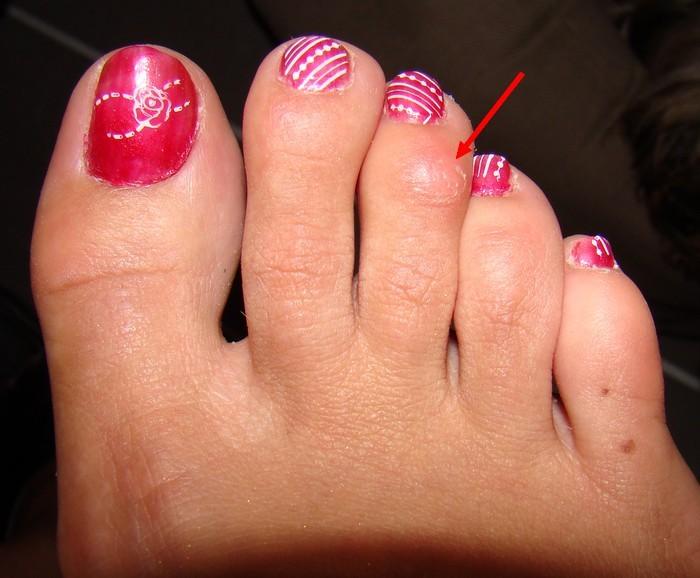 La publicité sur le microorganisme végétal des pieds