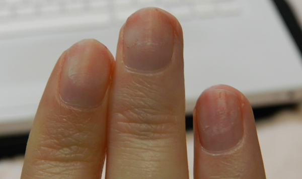 faux ongles ca abime